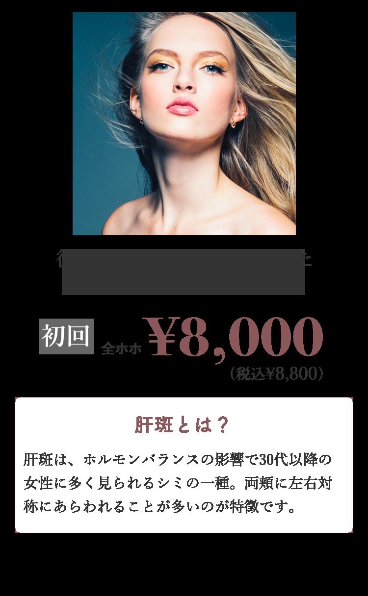従来のレーザーでは難しかった「肝斑」の治療が可能に!初回顔全体¥8,800