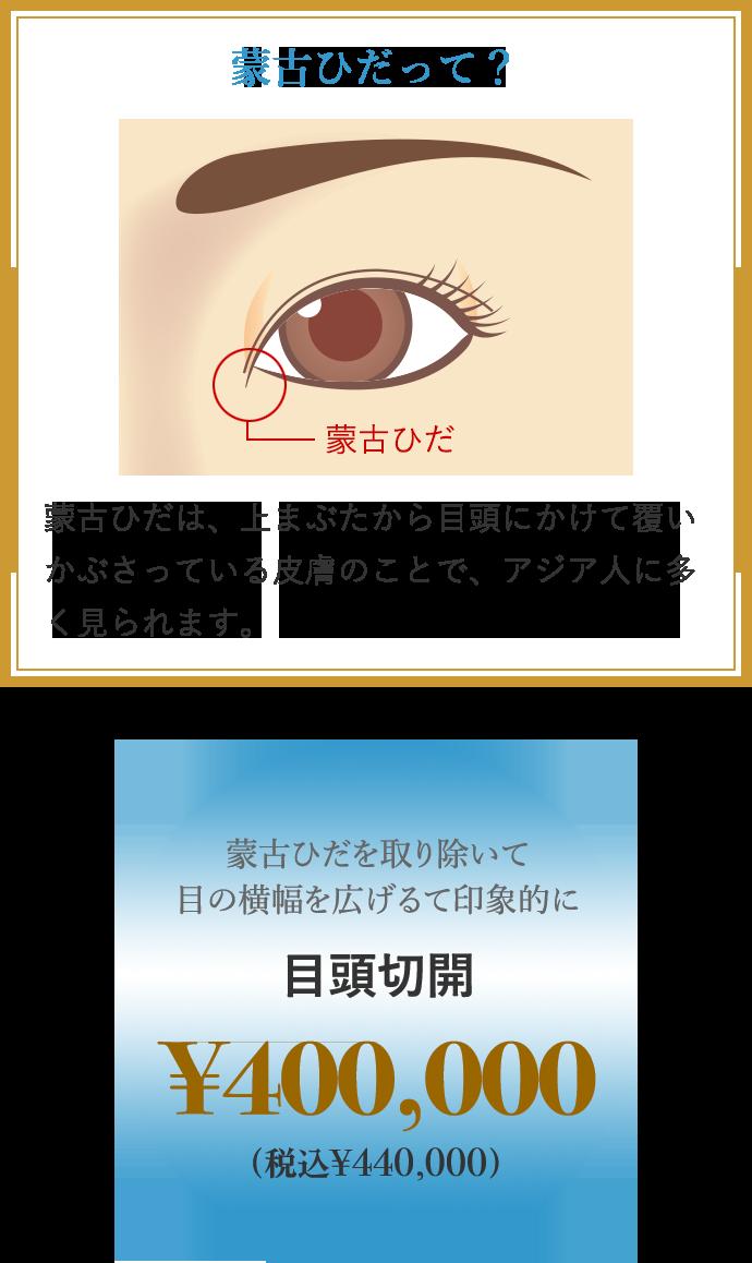 蒙古ひだを取り除いて目の横幅を広げて印象的に 目頭切開 ¥200,000 蒙古ひだって? 蒙古ひだは、上まぶたから目頭にかけて覆いかぶさっている皮膚のことで、アジア人に多く見られます。