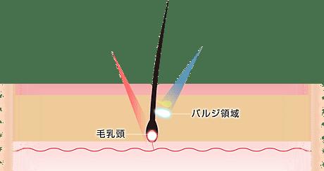 照射図(メカニズム)