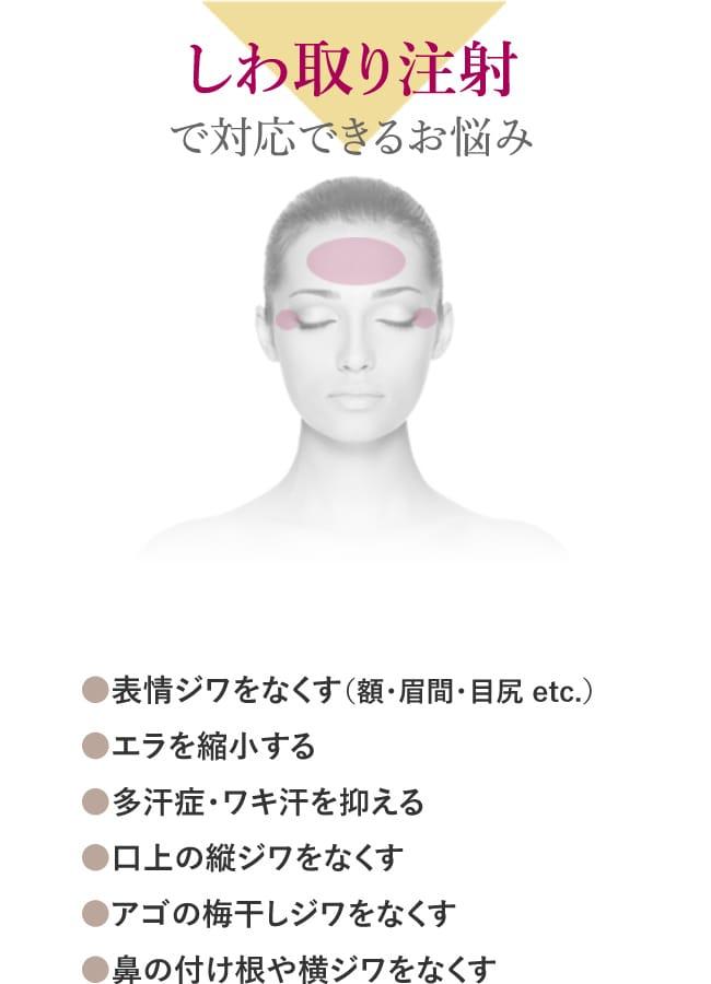 しわ取り注射で対応できるお悩み ●表情ジワをなくす(額・眉間・目尻 etc.) ●エラを縮小する ●多汗症・ワキ汗を抑える ●口上の縦ジワをなくす ●アゴの梅干しジワをなくす ●鼻の付け根や横ジワをなくす