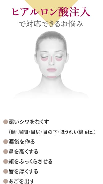 ヒアルロン酸注入で対応できるお悩み ●深いシワをなくす(額・眉間・目尻・目の下・ほうれい線 etc.) ●涙袋を作る ●鼻を高くする ●頬をふっくらさせる ●唇を厚くする ●あごを出す