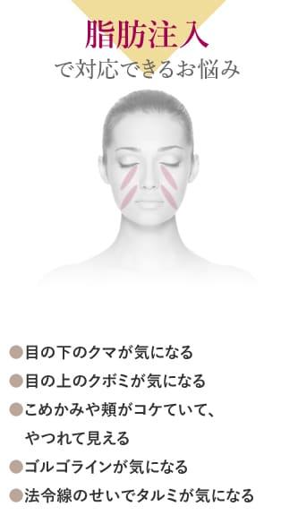 脂肪注入で対応できるお悩み ●目の下のクマが気になる ●目の上のクボミが気になる ●こめかみや頬がコケていて、やつれて見える ●ゴルゴラインが気になる ●法令線のせいでタルミが気になる