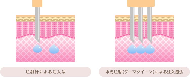 注射針と水光注射(ダーマクイーン)による注入の違い