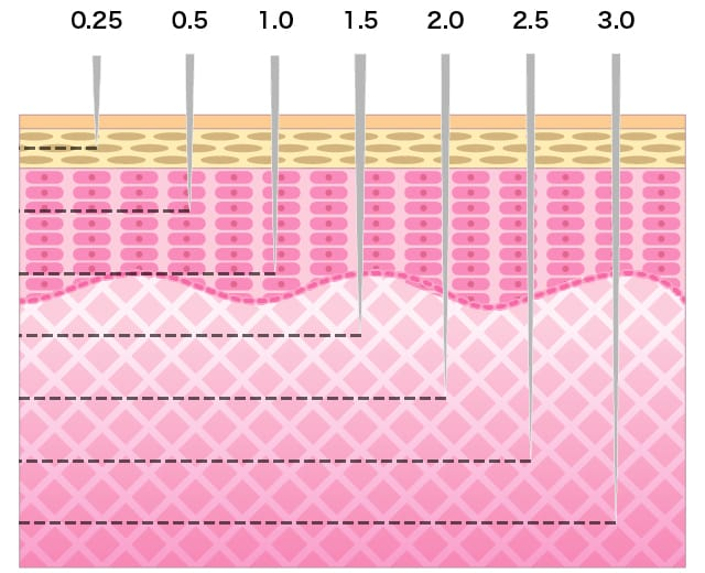 針の長さは、0.15mmから3.0mmまで幅広い穿刺深度(せんししんど)を選択できます。